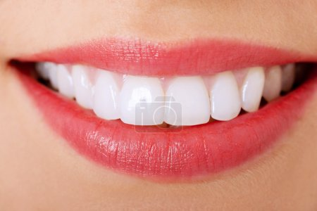 Photo for Close up of a perfect smile - Royalty Free Image