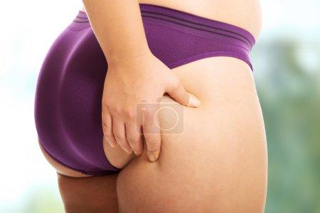 woman checking  fat