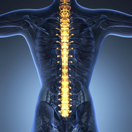 Human backache and back pain with an upper torso body skeleton s