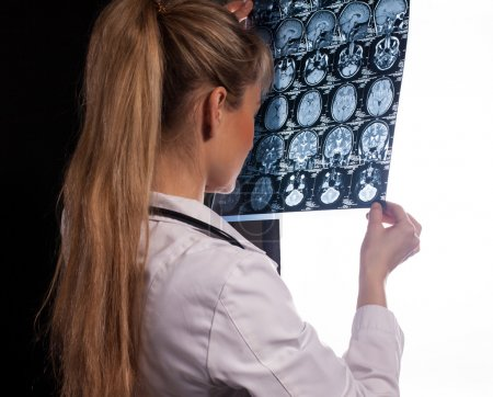 Doctor woman with mri of human brain