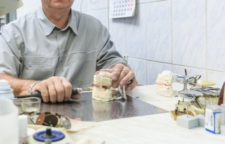Articulator with dental prosthesis model in laboratory