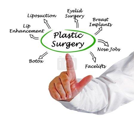 Photo pour Diagramme de chirurgie plastique - image libre de droit