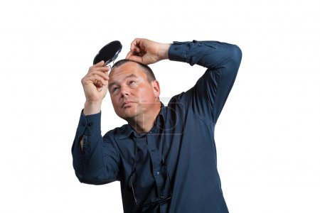 Man with balding head