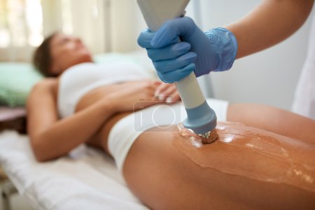 Correction cellulite figures  with acoustic wave therapy in the