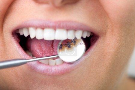 Lingual braces on dental mirror, close up...