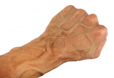human fist and wrist with swollen vein, isolated
