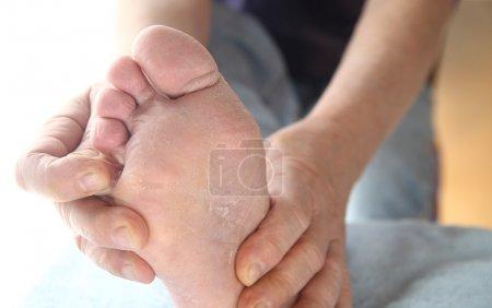 Photo for A man checks the dry, peeling skin of his athletes foot fungus between his toes. - Royalty Free Image