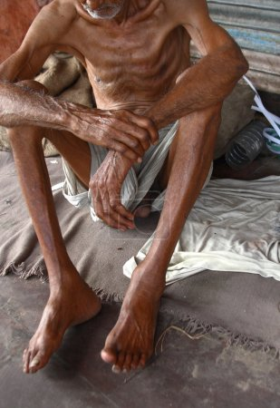 Photo for India - Circa 2007: very thin and poor man on street - Royalty Free Image
