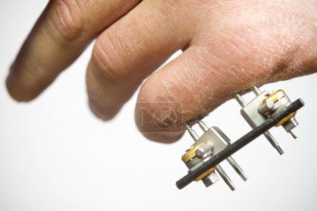 Exterior rig to support broken finger