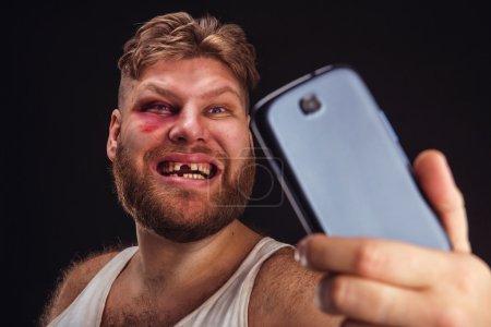 Photo pour Homme avec ecchymose et sans dent a selfie sur fond noir - image libre de droit