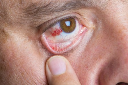 Red bloodshot eyes in a middle aged man...