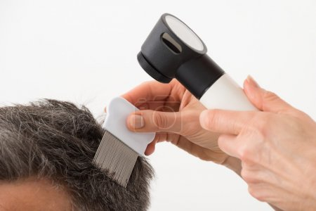 Person With Dermatoscope Examining Patient's Hair