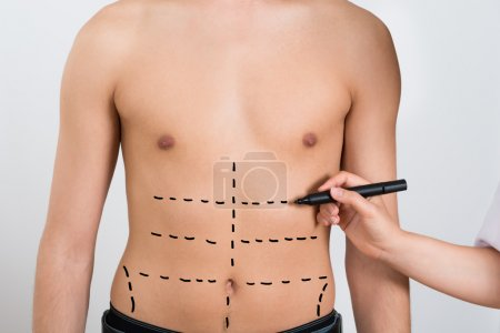 Hand Drawing Correction Lines On Abdomen