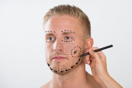 Correction Mark For Plastic Surgery