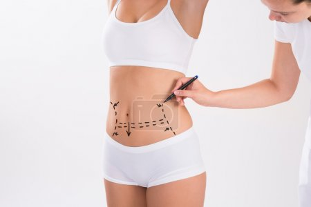 Surgeon Preparing Woman For Liposuction Surgery