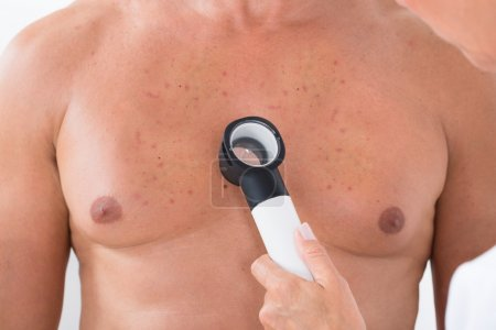 Photo for Close-up Of Doctor's Hand Examining Acne Skin Of Man With Dermatoscope - Royalty Free Image