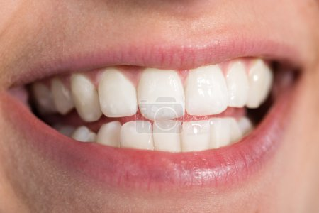 Woman Showing Healthy White Teeth