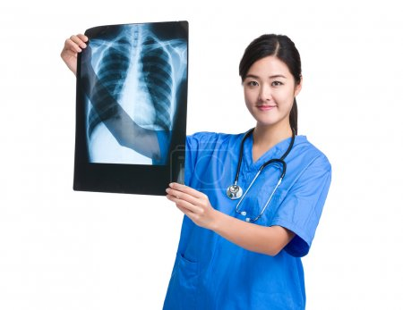 asian young woman doctor with x ray