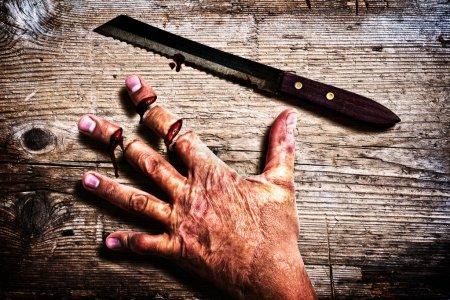 Foto de Hombre que accidentalmente cortó los dedos - Imagen libre de derechos