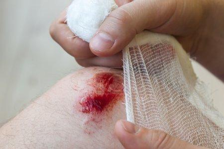 Foto de Hombre cura la herida en su rodilla. Sostener el vendaje en las manos - Imagen libre de derechos