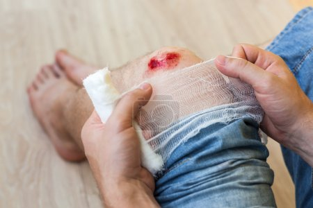 The result of the fall - the damaged knee