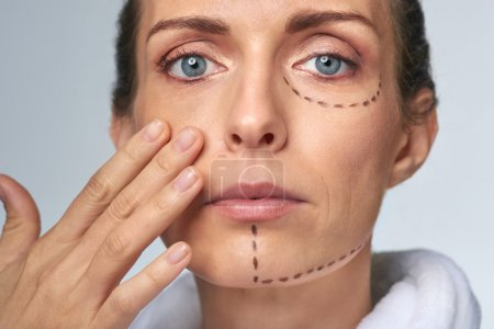 Perforation drawing lines on woman's face before procedure