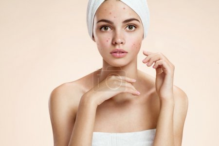 Scowling girl in shock of her acne with a towel on her head. Woman skin care concept