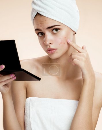 Girl with mirror demonstrate her pimples. Woman skin care concept