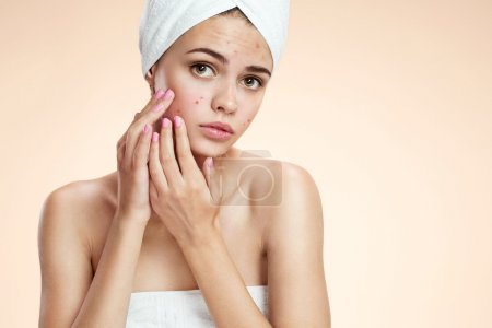 Teenage girl squeezing her pimples, removing pimple from her face.  Woman skin care concept