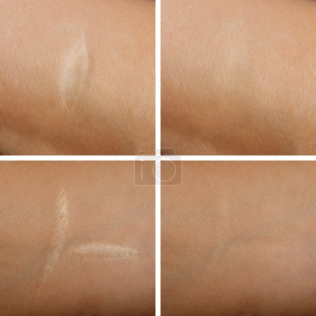 Removal of scars on the skin