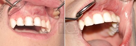 Caries before and after treatment
