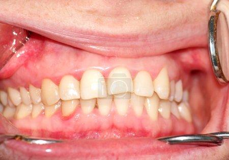 Photo pour Malocclusion. Courbure de la dentition supérieure. Image en gros plan - image libre de droit