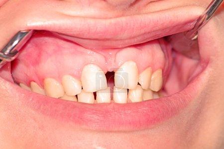 Photo pour Diastème de la mâchoire supérieure et odontoschisme de la mâchoire inférieure - image libre de droit