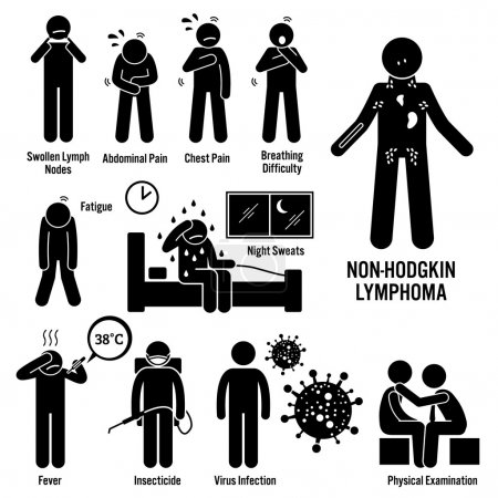 Illustration for Set of illustrations for Non-Hodgkin lymphoma lymphatic cancer disease which include the symptoms, causes, risk factors, and the diagnosis for the illness. - Royalty Free Image
