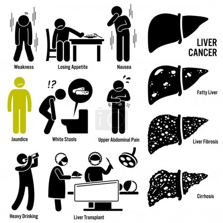 Liver Cancer Symptoms Causes Risk Factors Stick Figure Pictogram Icons