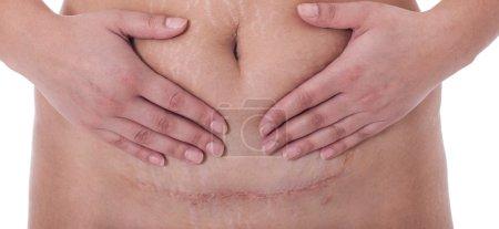 Photo pour Cicatrice d'une naissance par césarienne sur fond blanc . - image libre de droit