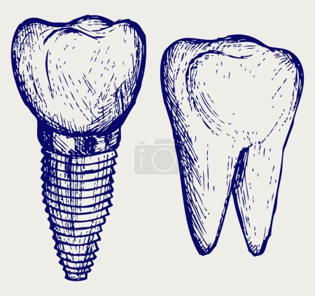 Tooth implant and molar