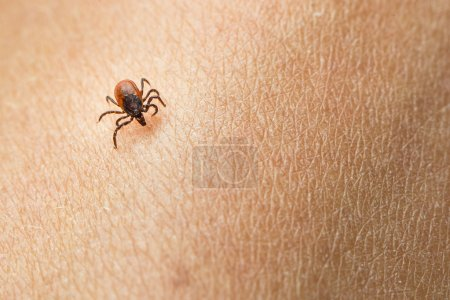 Tick - parasitic arachnid blood-sucking carrier of diseases