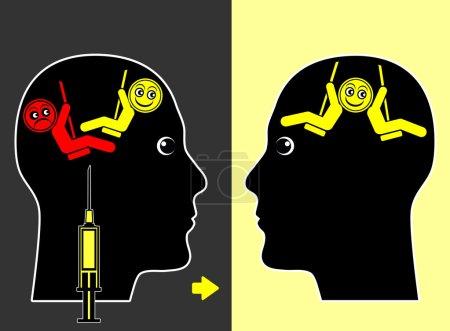 Foto de Tratamiento médico para reducir la frecuencia de los episodios de estado de ánimo bipolar de manía y depresión - Imagen libre de derechos