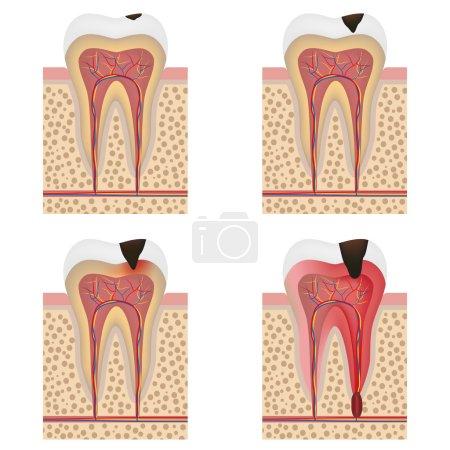 Development of dental caries illustration.