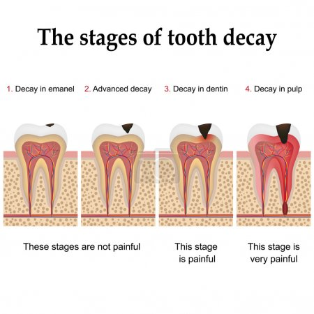 Tooth decay formation