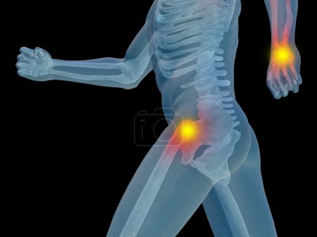 joint or articular pain, ache or injury isolated on black background