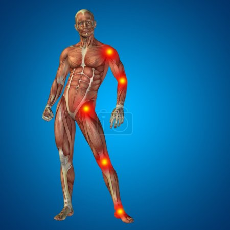 articular or bones pain