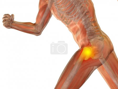 joint or articular pain, ache or injury