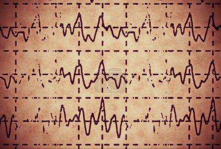 brain wave on electroencephalogram EEG for epilepsy, illustration grunge background