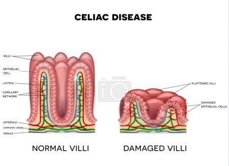 Celiac disease affected small intestine villi