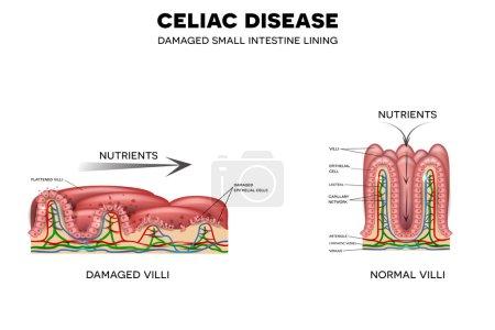 Celiac disease affected intestinal villi