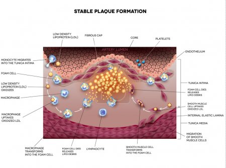 Stable plaque, Atherosclerosis