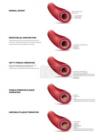 Atherosclerosis detailed illustration, progression till Thrombus