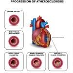 Progression of Atherosclerosis till heart attack. ...